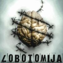 lobotomija